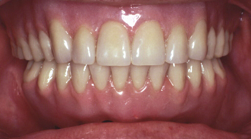 Lower Fixed Implant Hybrid - After